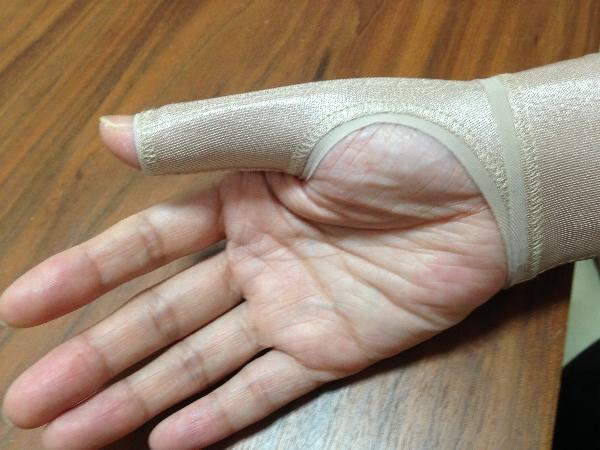 腱鞘炎に手首&親指のサポーターを装着したところ